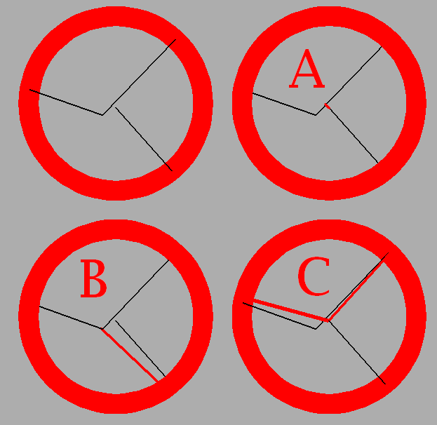Which is correct.PNG